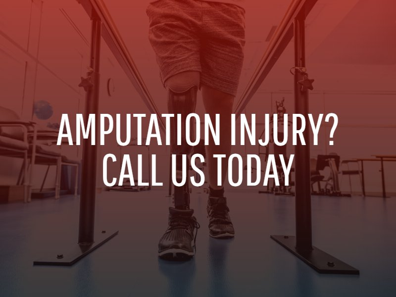 Dallas Amputation Injury Lawyer